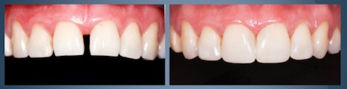 Before and After Photo of Erin Wang's Aesthetic Case Study for the Dentsply Sirona Restorative Global Clinical Case Contest