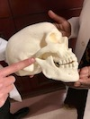 TMJ Indicated on Skull