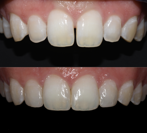 Before and After Photo: Dr. Jenna Chimon's Aesthetic Case Study for the Dentsply Sirona Restorative Global Clinical Case Contest